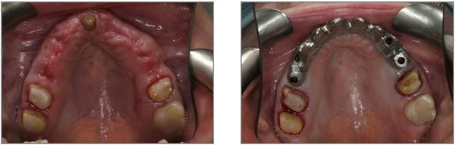 Lake Area Dental