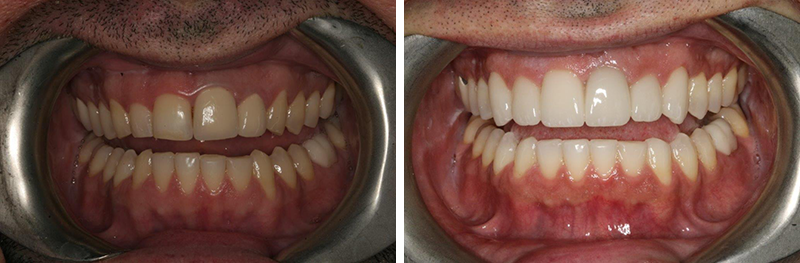 Orthodontics and Crowns