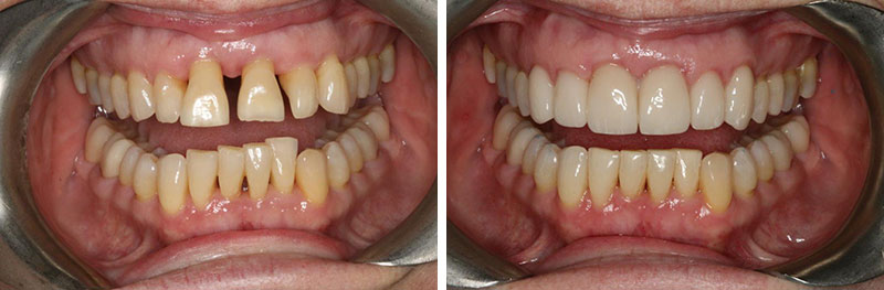 Crowns and Occlusal Equilibration