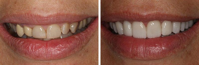 Full Mouth Rehabilitation & Crown Lengthening