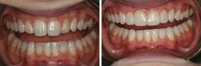 Crowns and Reshaping