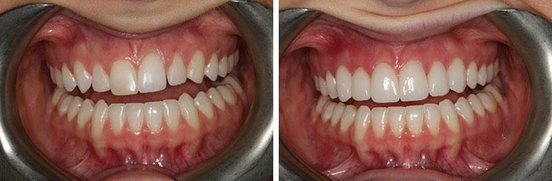 Orthodontics, Bonding, Crown Lengthening and Veneers and Crowns