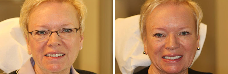 Full Mouth Rehabilitation with Crown Lengthening